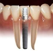 Dental Implant is procedure of artificial tooth root replacement through surgery.    Dental Implant treatment was performed even before thirteen hundred years by