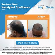 hair transplantation services