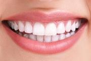 Smile Makeover Dental Clinic in Kerala